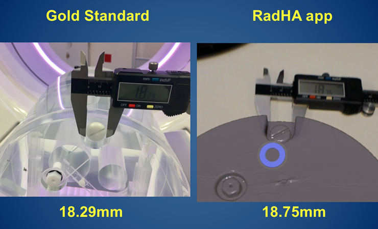HoloSurg3D's RadHA A.R. app shows high degree of accuracy and precision