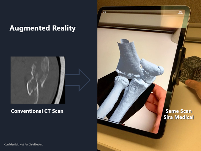Clarity In Medical Imaging: The Case For Augmented Reality